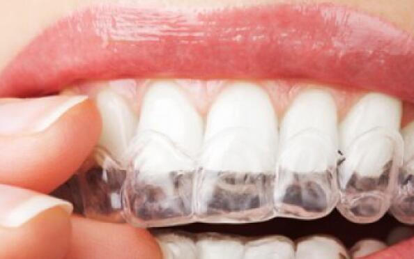 Blanqueamiento dental en casa con férulas personalizadas por profesionales