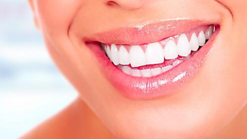 Blanqueamiento dental por solo 20€