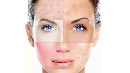 Tratamiento de mesoterapia facial con vitaminas