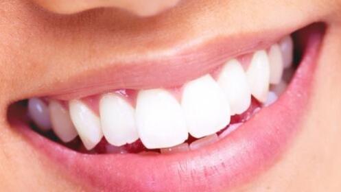 Limpieza bucal con pulido, fluoración y opción a empaste